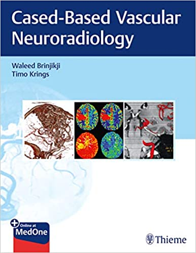 Imaging in Neurovascular Disease: A Case-Based Approach 1st Edition