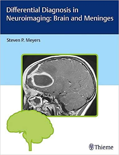 Differential Diagnosis in Neuroimaging: Brain and Meninges 1st Edition