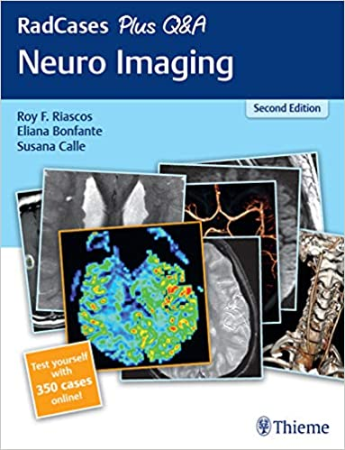 RadCases Plus Q&A Neuro Imaging 2nd Edition