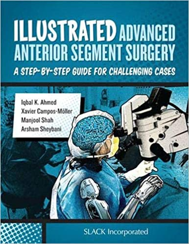 Illustrated Advanced Anterior Segment Surgery: A Step-by-Step Guide for Challenging Cases 1st Edition