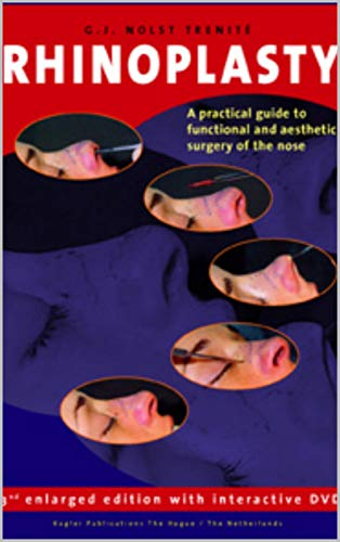 Rhinoplasty (3rd Enlarged Edition): A practical guide to functional and aesthetic surgery of the nose